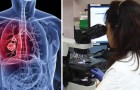 Lotta al tumore ai polmoni: testato con successo un nuovo farmaco più potente della chemioterapia