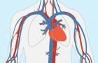 Je lichaam kan je met deze 8 symptomen een maand vooraf waarschuwen voor een hartaanval