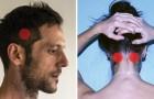 Hoe in 5 minuten hoofdpijn te verminderen zonder medicijnen te gebruiken