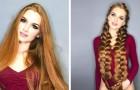 Da adolescente soffriva di alopecia: ora questa ragazza dà consigli su come prendersi cura dei capelli