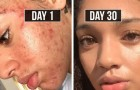 She heals her acne with natural methods in 30 days and today this method helps thousands of people!
