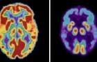 Una sola notte in bianco aumenta la produzione di tossine collegate alla comparsa dell'Alzheimer
