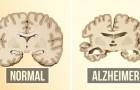 La prévention de la maladie d'Alzheimer peut être plus facile que vous ne le pensez : voici 2 choses que vous pouvez faire