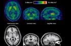 Segundo os neurocientistas, esquecer das coisas é sinônimo de inteligência