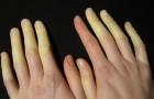Mani e piedi freddi, che cambiano colore: la sindrome di Raynaud è molto diffusa, ma pochi la riconoscono