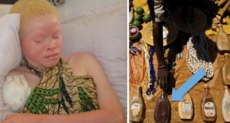 Die stille Jagd auf die Albinos: Das tragische Schicksal der weißen in Tansania