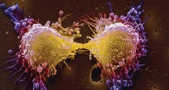 Identifiée la protéine responsable des métastases tumorales : maintenant un médicament pourrait la bloquer