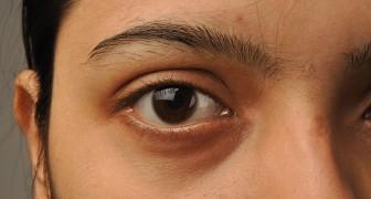 Grandeur des pupilles et QI: une étude révèle qu'ils sont étroitement liés