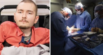 La première greffe de tête humaine: tous les détails d'une pratique qui semble sortie d'un film de science-fiction