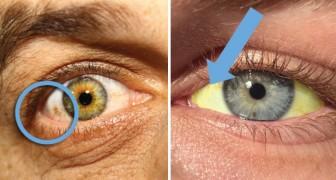 12 condizioni del nostro corpo che possiamo diagnosticare dagli occhi