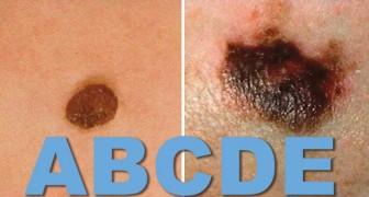 La regola dell'ABCDE per distinguere un neo benigno da un melanoma, che tutti dovrebbero conoscere