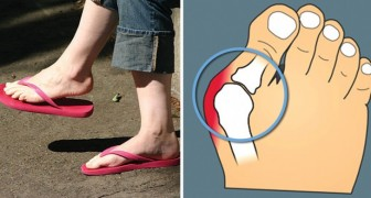 Avete uno di questi problemi ai piedi? La causa potrebbero essere le infradito: ecco cosa provocano
