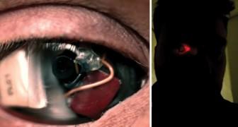Eyeborg: deze man heeft een cameraprothese in zijn rechteroog!