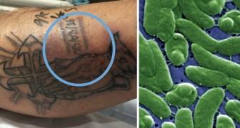 L'estate è la stagione meno indicata per un tatuaggio: la tragica vicenda di questo ragazzo parla chiaro