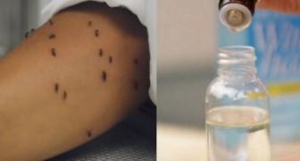 Los mosquitos te torturan? Para la ciencia este remedio natural es mas eficaz de aquellos quimicos