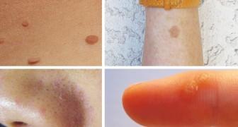 12 rimedi naturali per trattare verruche, macchie della vecchiaia, punti neri e altri comuni inestetismi