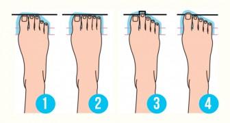 Welche Form hat dein Fuß? Die Antwort zeigt etwas über deine Persönlichkeit
