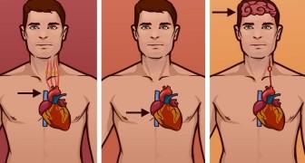 Erkenne den Unterschied zwischen einem Infarkt, einem Herzstillstand und einem Schlaganfall