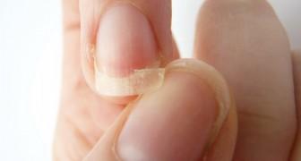Le tue unghie sono deboli e si spezzano? Ecco cosa sta cercando di dirti il corpo