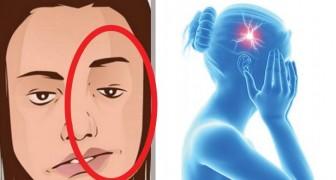 Antes que se verifique un ataque cerebrovascular se manifiestan estas 7 señales