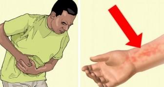6 signaux envoyés par le foie quand il ne fonctionne pas correctement.