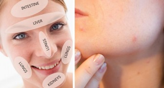Your pimples are trying to tell you something! Find out what it is with face mapping!