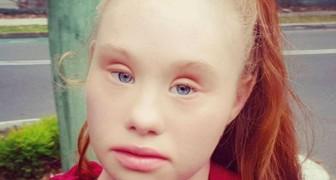 Ein Mädchen mit Down-Syndrom erobert die wichtigsten Laufstege der Welt: Hier ist sie in all ihrer Schönheit!
