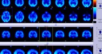 Un italiano inventa lo strumento per la diagnosi precoce del Parkinson: lo useranno anche i medici di base