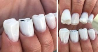 Fingernägel in Form von Zähnen: Die extremen Schöpfungen dieses Nagelstudios überschreiten jede Vorstellungskraft
