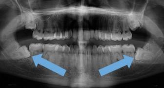 È davvero necessario rimuovere sempre i denti del giudizio?