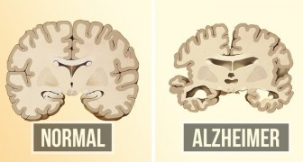 Alzheimer voorkomen is misschien makkelijker dan je denkt: hier zijn twee dingen die je kan doen
