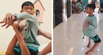Han är 11 år och har bakåtvända knän, en operation ändrade hans sätt att gå