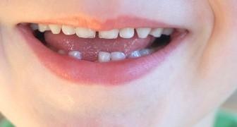 Conservare i denti da latte per utilizzare le cellule staminali: quanto è utile farlo?