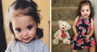 Dit meisje heeft een genetische misvorming: haar enorme ogen hebben duizenden mensen veroverd