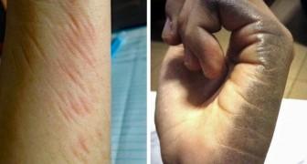 20 situaties die alleen linkshandigen kunnen begrijpen... en haten!