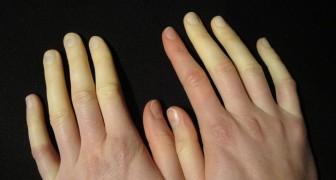 Mains et pieds froids, qui changent de couleur : le syndrome de Raynaud est répandu, mais peu le reconnaissent