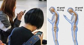 Guardate di continuo il cellulare? Ecco cosa comporta per la vostra colonna vertebrale...