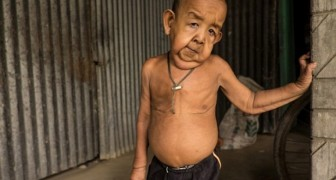 Bayezid Hossain is a four-year-old Benjamin Button from Bangladesh!