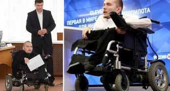 Il est handicapé dès sa naissance, et décide de subir une transplantation JAMAIS essayée jusqu'à présent