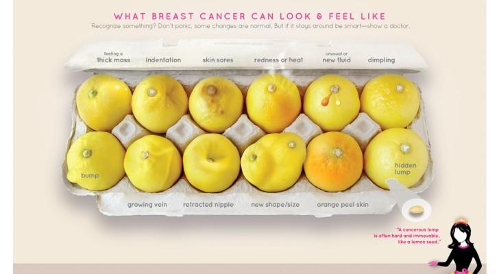 Les citrons qui aident à diagnostiquer le cancer du sein: les observer attentivement peut vous sauver la vie