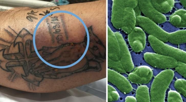 L'été est la saison la moins indiquée pour un tatouage: le cas tragique de cet homme parle clair