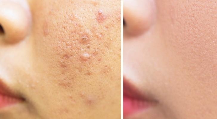 Il rimedio perfetto per i problemi della pelle che tutti abbiamo in casa