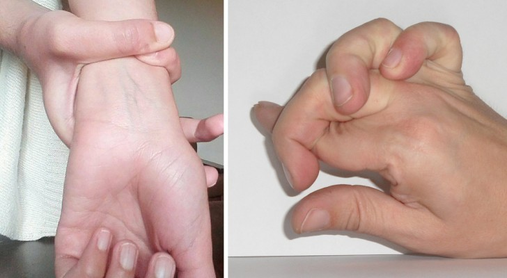Can you easily perform these movements with your hands? You may have Marfan Syndrome!