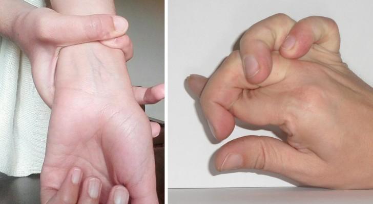 Sabes cumplir facilmente estos movimientos con las manos? Podrias estar afectado del Sindrome de Marfan