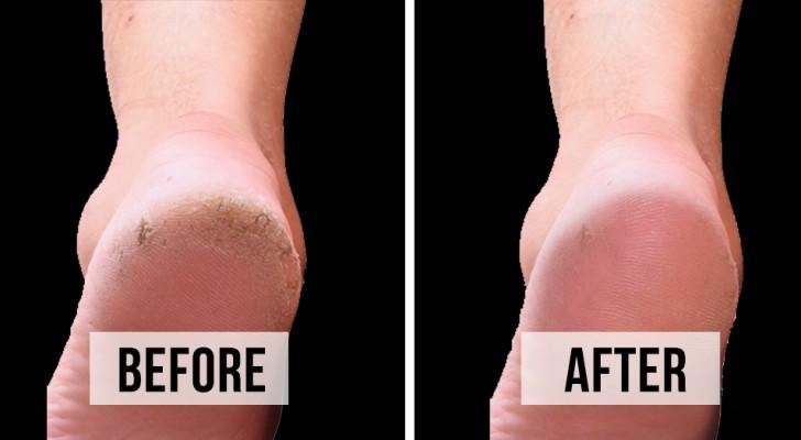5 gör-det-själv metoder för att bli av med slitna hälar och få jätte mjuka fötter