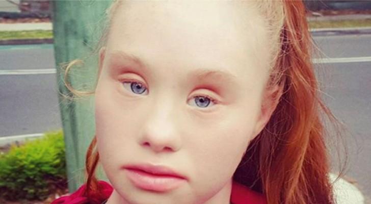 En flicka med Downs syndrom tar catwalken med storm, här är hon i all sin skönhet!