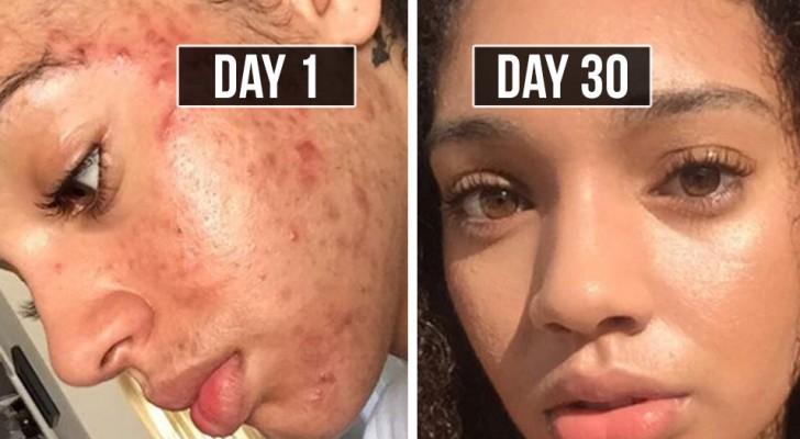Elimine a acne com métodos naturais em 30 dias: siga as dicas de Brianna!