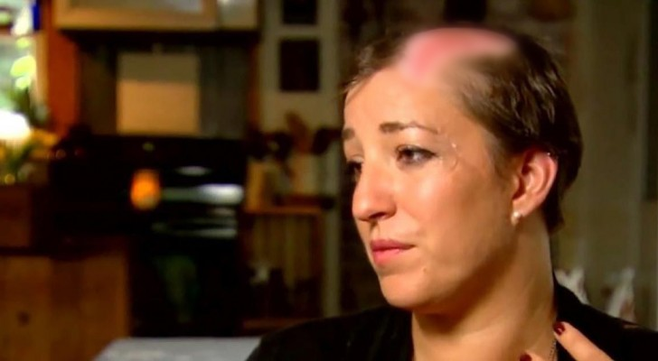 She lost part of her hair in a few seconds, now she wants to warn other women about this very common risk!