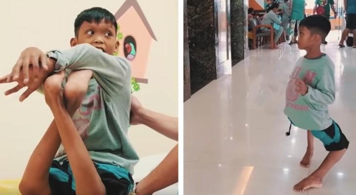 Ha 11 anni ed ha le ginocchia piegate al contrario: un'operazione ha cambiato il suo modo di camminare