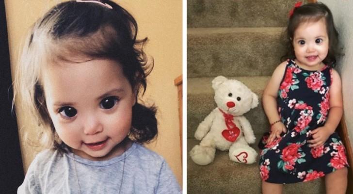 Cet enfant a une malformation génétique : ses grands yeux ont conquis des milliers de personnes.